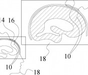 Patent-example-Utility-Cranial-Implants__